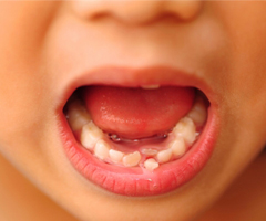 Ayrık Dişler Bonding Uygulaması