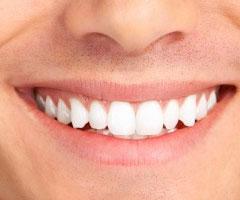 Porselen Diş Yaprakçıkları