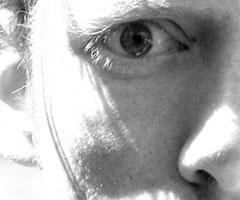 göz altı çevresi cilt